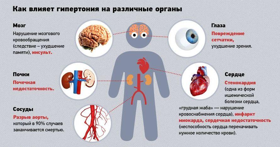 Кофе при гипертонии - Гипертонии нет