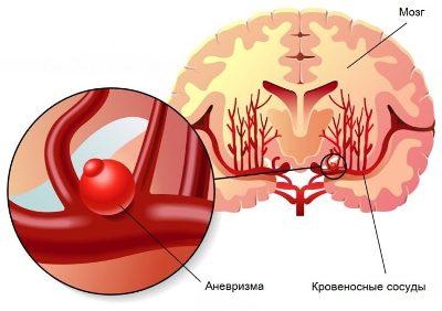 Криз осложненный отеком мозга