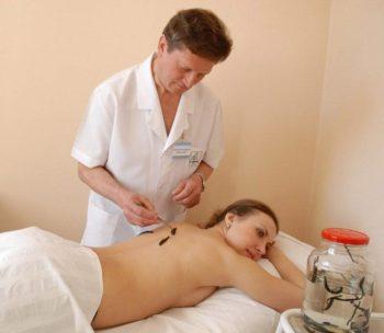 Лечение гипертонии пиявками: точки куда ставить, польза и вред, противопоказания гирудотерапии