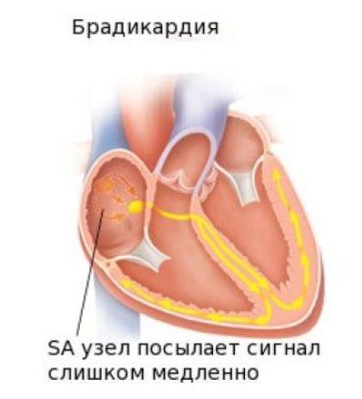 Каковы причины редкого пульса при высоком давлении, что делать, первая помощь и лечение