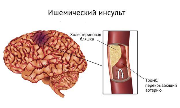 Размер очага инсульта