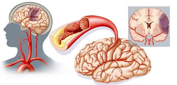 Классификация ишемического инсульта
