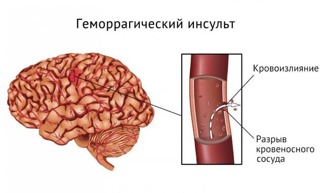 Инсульт - виды, симптомы, лечение, реабилитация