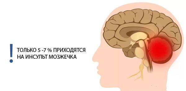 Инсульт мозжечка головного мозга последствия