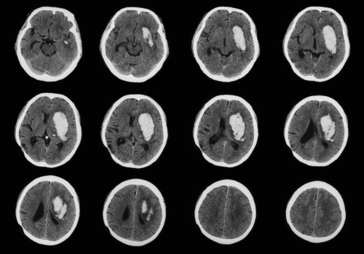 Как взрослым диагностируют повышенное внутричерепное давление