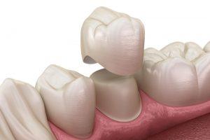 Боль зуба под коронкой