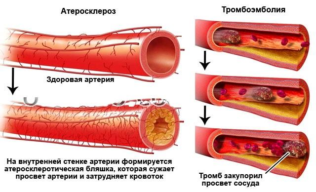 Различие артериального давления на руках